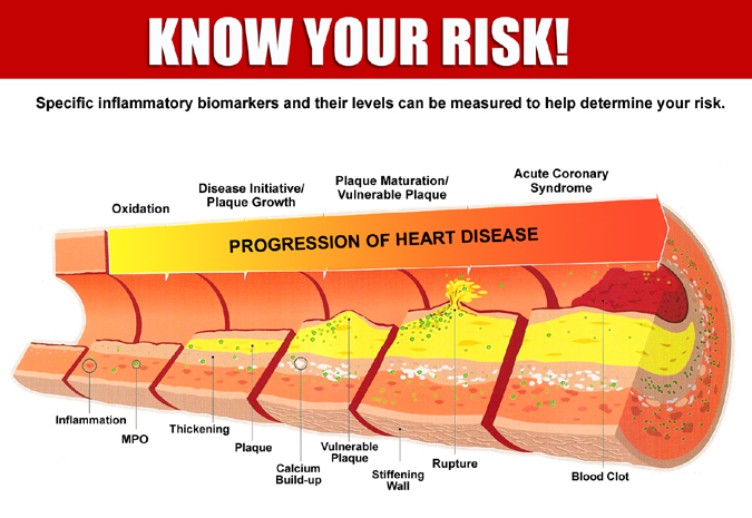 Know Your Risk