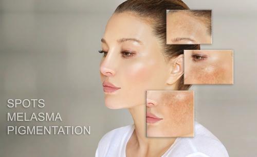 Dark spots_ freckles_hyperpigmentationmelasma or chloasma_concept - sk...
