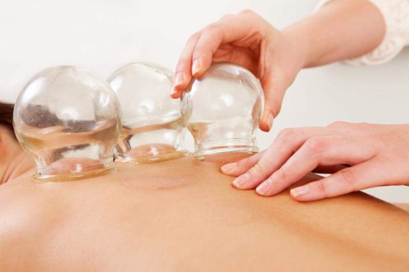 cupping_on_back_hands.jpg