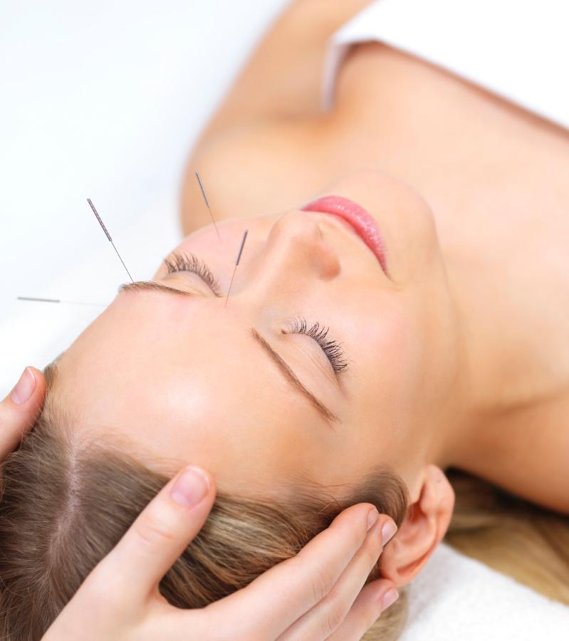 Girl getting acupuncture