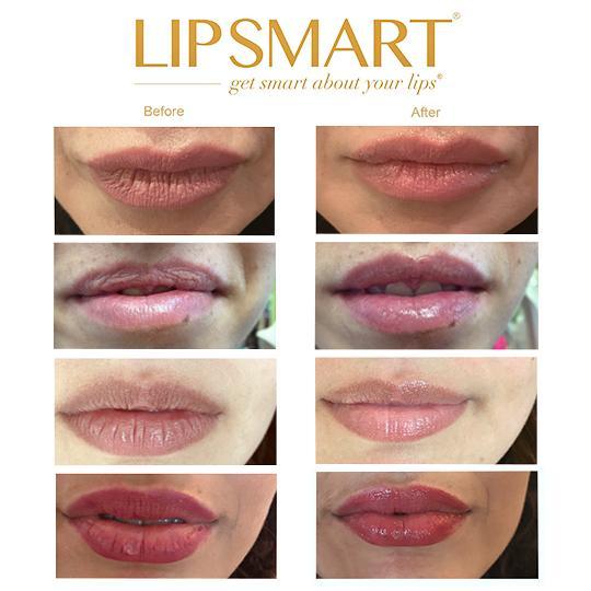 Lipsmart B&A