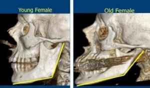 Aging changes facial bones young