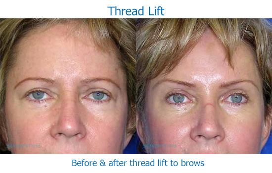 Thread lift results