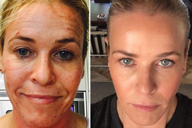 New filler for under eyes and lips, Chelsea Handler gets