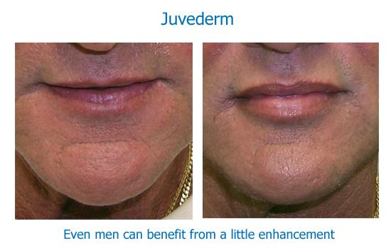 Male lip augmentation