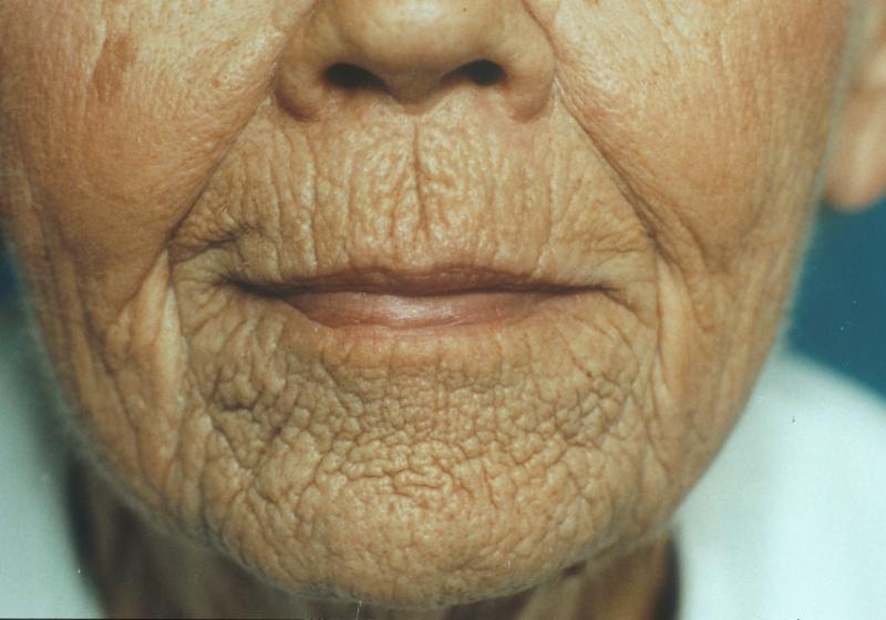 Lip lines thin skin