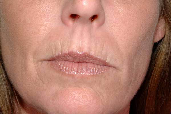 Lip lines with normal skin