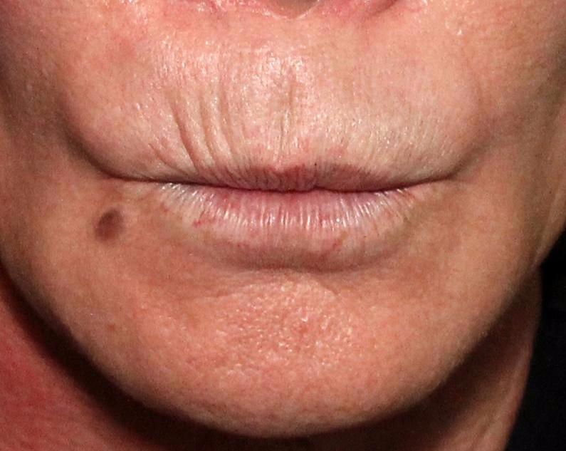 Dr. E's Lip lines