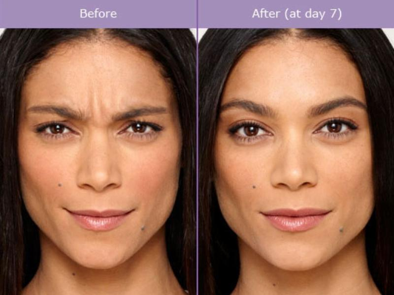 frown before after botox