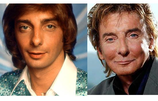 Barry Manilow then and now