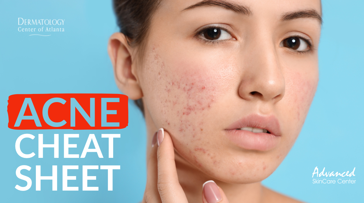 acne cheat sheet.png