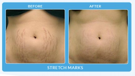 procell stretch marks